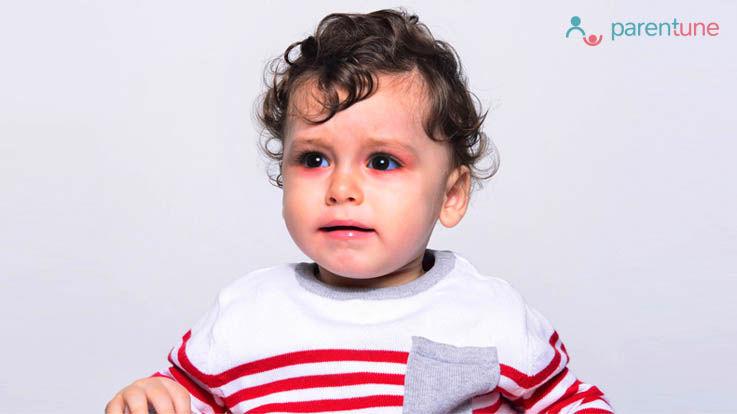 आंखों में इंफैक्शन Conjunctivitis के लिए घरेलू उपचार