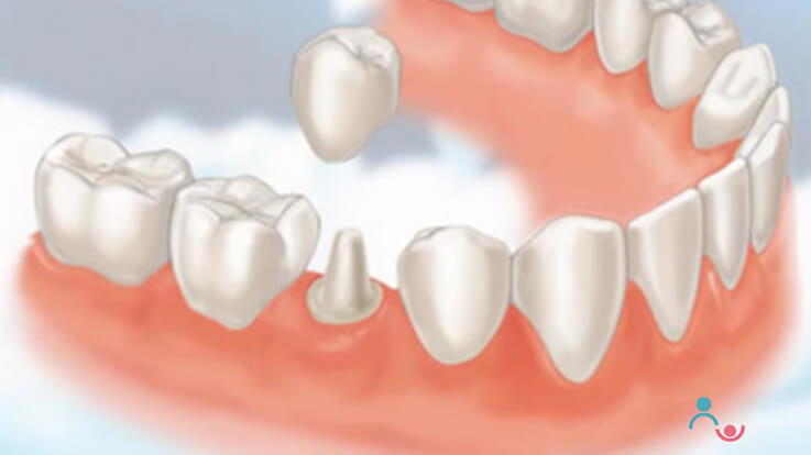 Handling Tooth Injuries