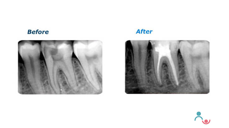 Understanding the root canal treatment for your child