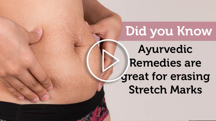 Ayurvedic remedies are great for reducing stretch marks