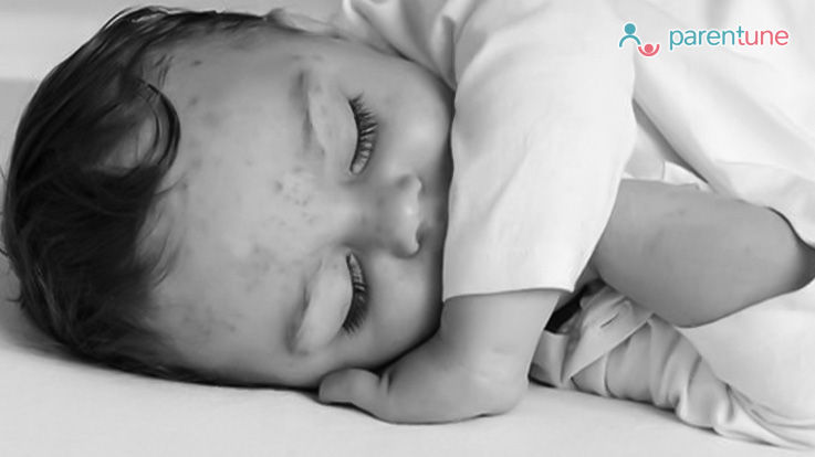 Chicken Pox In Babies Causes Prevention Treatment Tips Remedies